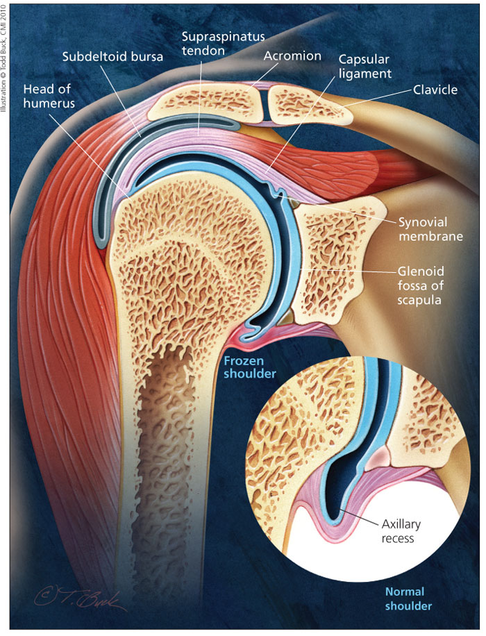 A new treatment option for frozen shoulder | Simon Moyes Orthopaedic ...